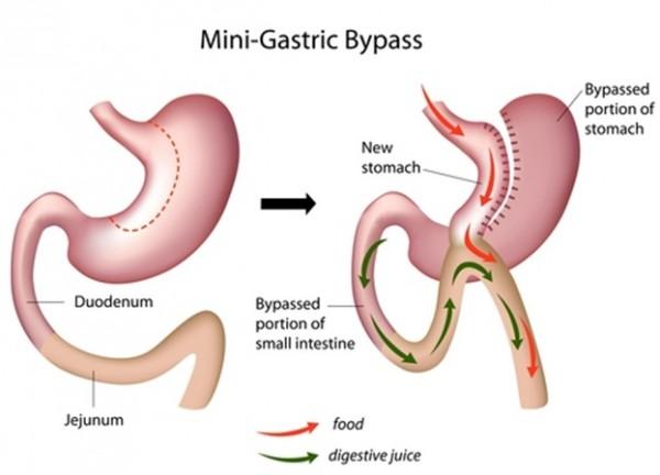 عمل مینی بای پس معده 600x432 - جراحی مینی بایپس (بایپس تک آناستوموزی)