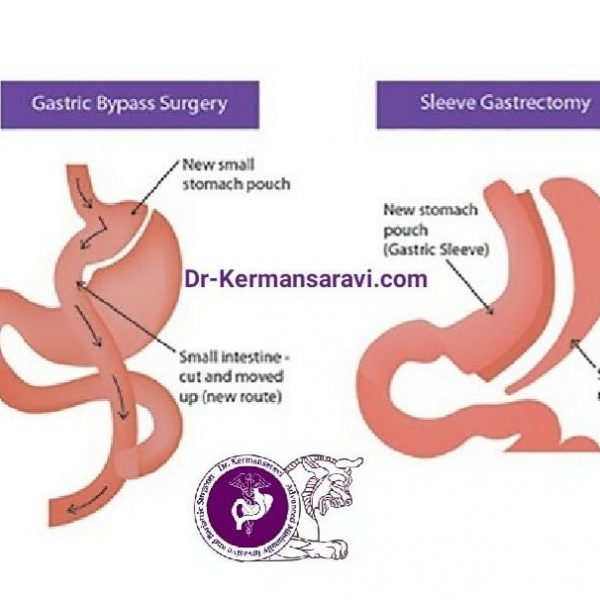 WhatsApp Image 2020 05 18 at 10.51.06 AM 600x600 - فاکتورهای موفقیت جراحیهای چاقی چیست؟